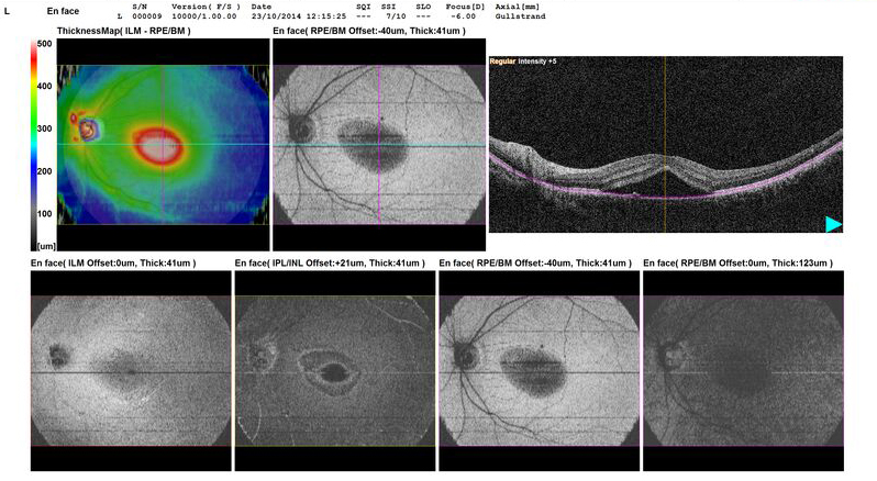 OCT detects macula disease.